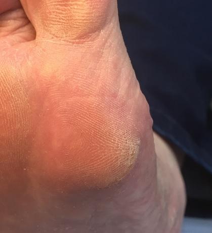 dry hard skin on feet
